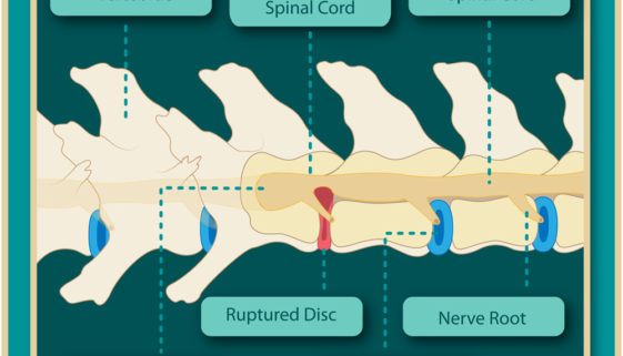 dog spinal column showing ruptured disc from IVDD